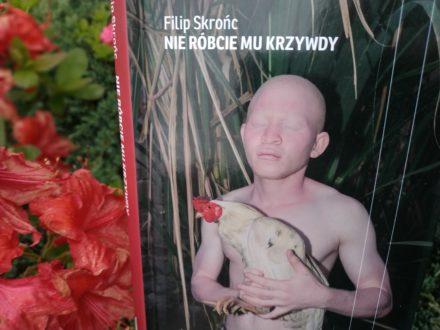 Filip-Skronc-nie-robcie-mu-krzywdy